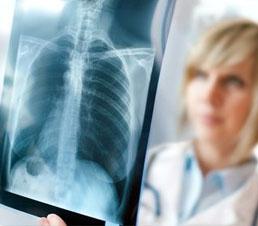 consultatie-pneumologie-clinica-zenmed